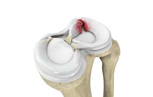Meniscus Tears of the Knee